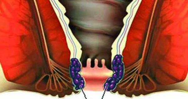 পাইলস বা অর্শ রোগ এবং হোমিওপ্যাথিক চিকিৎসা