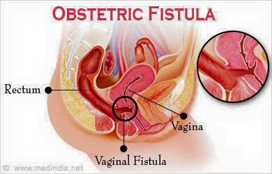 Anus fistula in painful repertory
