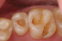 symptômes de la carie dentaire