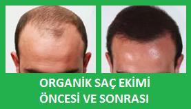 organik saç ekimi nedir