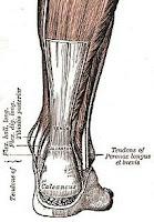 zapalenie ścięgna Achillesa urazy i kontuzje u biegaczy