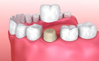 اسعار تلبيس الاسنان البورسلين