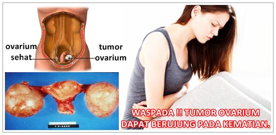 Cara Mengobati Tumor Ovarium Secara Alami Tanpa Operasi