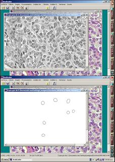 Segmentación morfometría microscópica