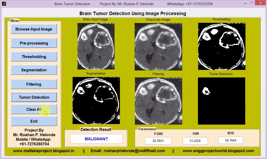 Matlab Code Brain Tumor Detection and Classification Using