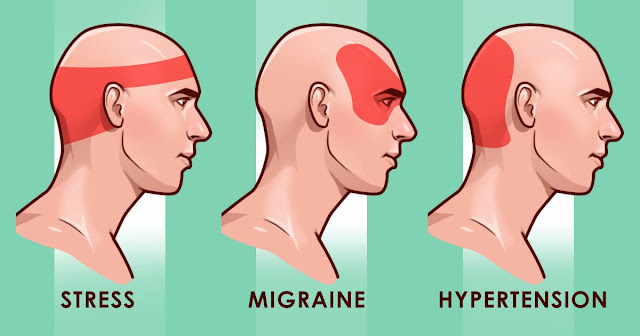 List of Pinpoints in the Body that should Press to Soothe Headache