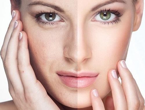 Vì sao nên chọn phương pháp căng da mặt không phẫu thuật