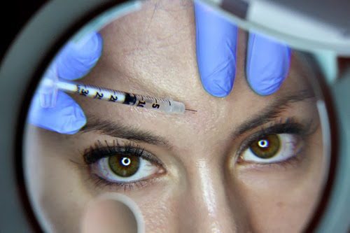 Everything You Need to Know about Botox