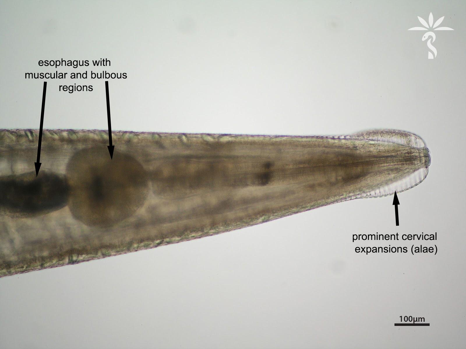 Enterobius vermicularis haha, Enterobiosis perm. Perm parazita kezelés, Bélférgek, bélférgesség