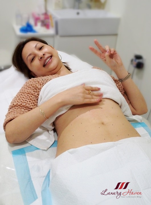 singapore-popular-lifestyle-blogger-reviews-liposonix-and-coolsculpting