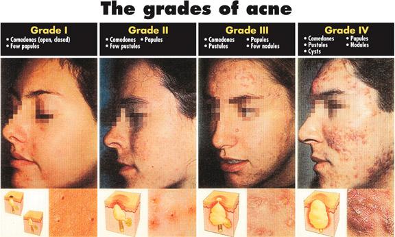 LadyJSkincare: Grades of Acne & Appropriate Treatment
