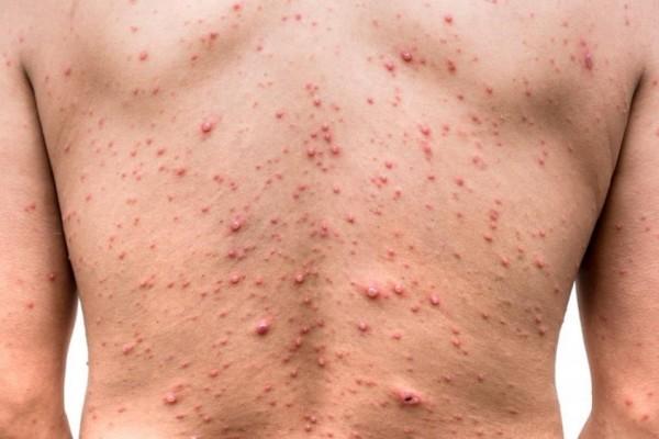 Waspada Hal Berikut Bisa Membuat Kamu Terinfeksi Penyakit Cacar Air