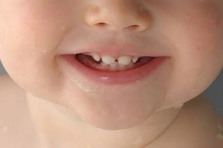Cara-Memutihkan-Gigi-Anak-1-Tahun