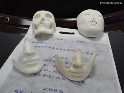 3D Prints of a face: Scientists are giving fresh hope to people with deformities