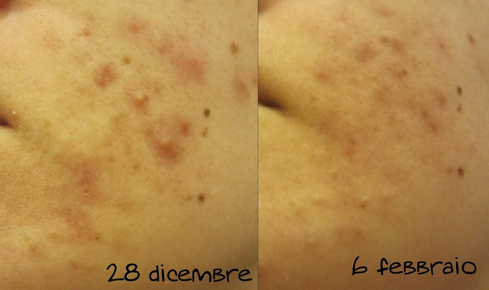 creme efficaci acne