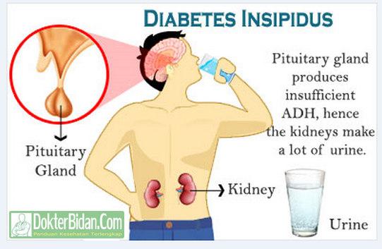 Diabetes Insipidus - Penyebab, Gejala, Pencegahan Komplikasi dan Pengobatanya