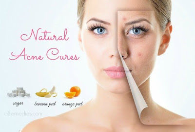 Acne Cures аnd Myths