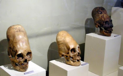 DNA from ancient elongated skulls prove they are not fully human.