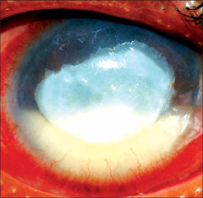 Fig. 2.5: A culture positive Fusarium keratitis presenting with a central thick plaque with a large hypopyon in the anterior chamber
