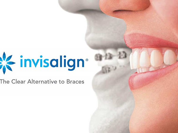 Steps to Straight Teeth Using Invisalign