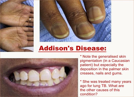 Addison's Disease, An Adrenal Disorders