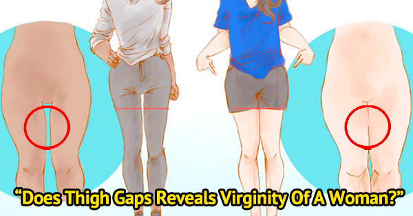 The truth about thigh gaps