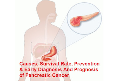 A surveillance jadwal and thus a greater chance of early diagnosis can possibly improve  Pancreatic Cancer : Causes, Survival Rate, Prevention and Early Diagnosis And Prognosis