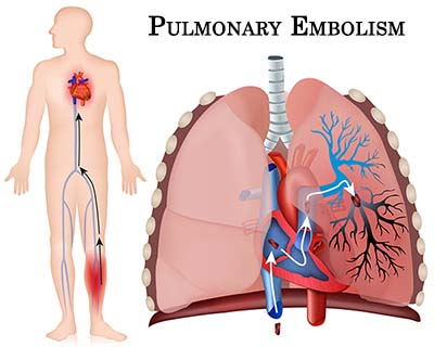 Pulmonary Embolism Air Travel