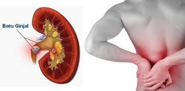 Pengobatan Untuk Menghilangkan Batu Ginjal Secara Efektif Dan Cepat Tuntaskan Penyakit Tanpa Operasi