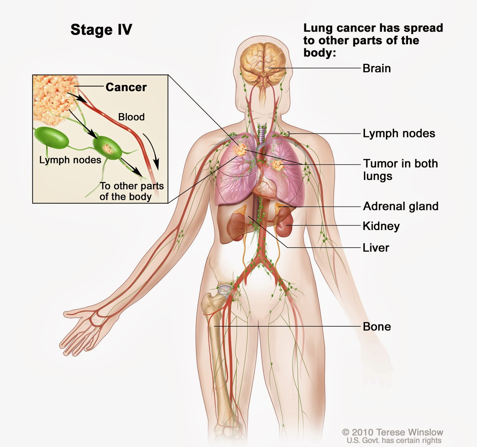 Lung Cancer Classification - What Is Stage IV?