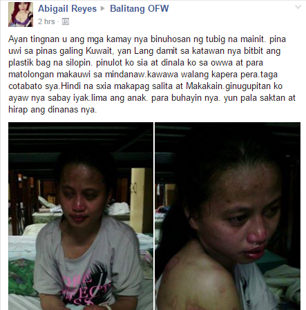 OFW Returns Home After Being Tortured by Employer in Kuwait