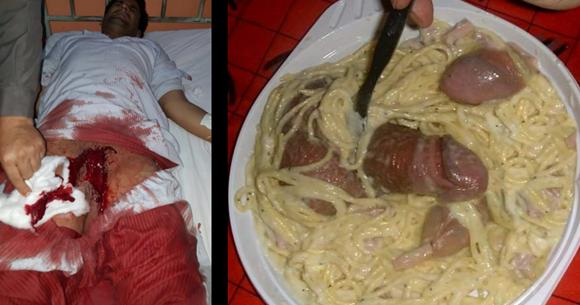 18 istri yang memotong kemaluan suami karena selingkuh dengan