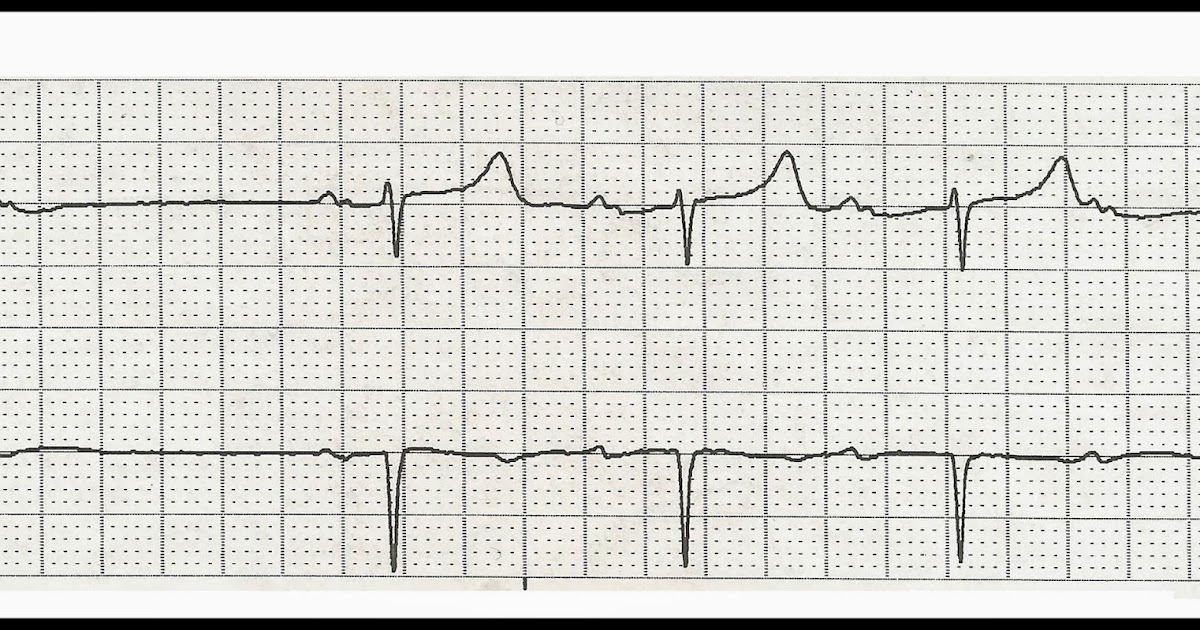 Float Nurse: Practice EKG Rhythm Strips 227