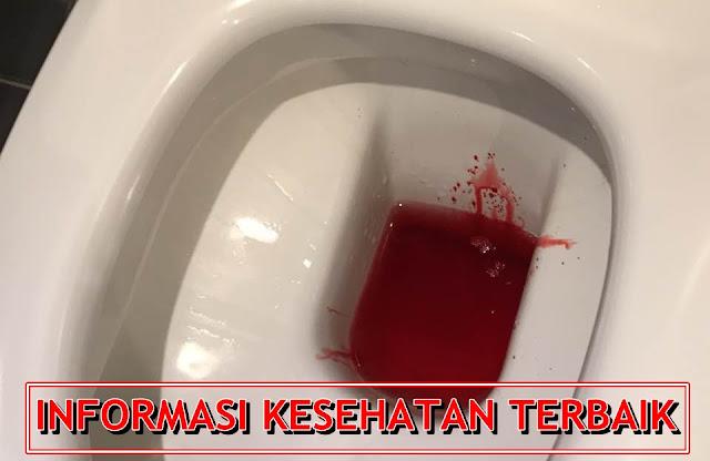 Info Seputar Penyakit Kencing Darah (Hematuria)