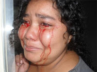 Médicos investigam caso de garota que 'chora' sangue no interior.Veja