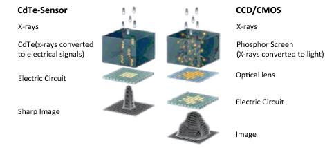 Digital Panoramic Cephalometric X Ray System Jual