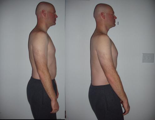 Image result for forgetfitness posture