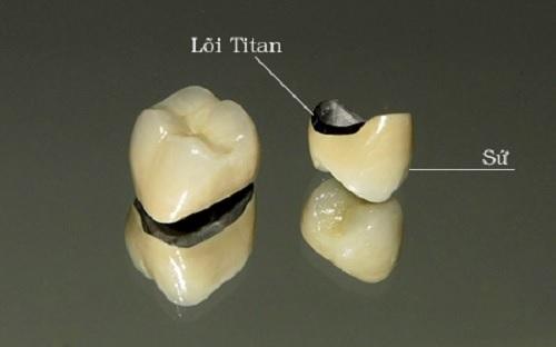 những điều nên biết về trồng răng sứ titan -2
