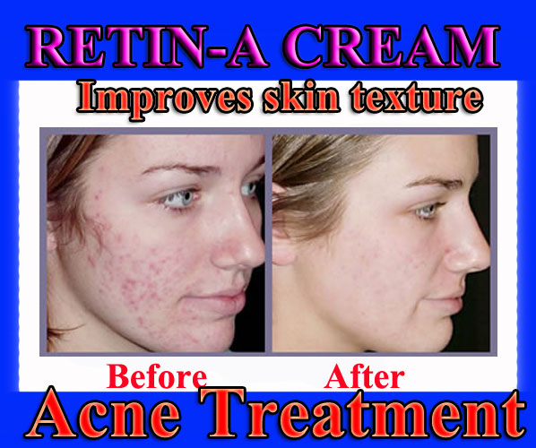 Stuff 4 Sale At Ebay Site Retin A Cream 10g Acne Scar Treatment