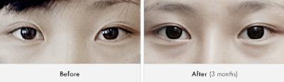 sebelum dan sesudah operasi plastik mata Korea tanpa sayatan