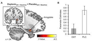 الأوكسيتوسين ocytocine لعلاج مرضى التوحد