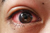 Hasil gambar untuk kotoran mata/belek