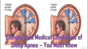 Complicated Medical Conditions of Sleep Apnea – You Must Know