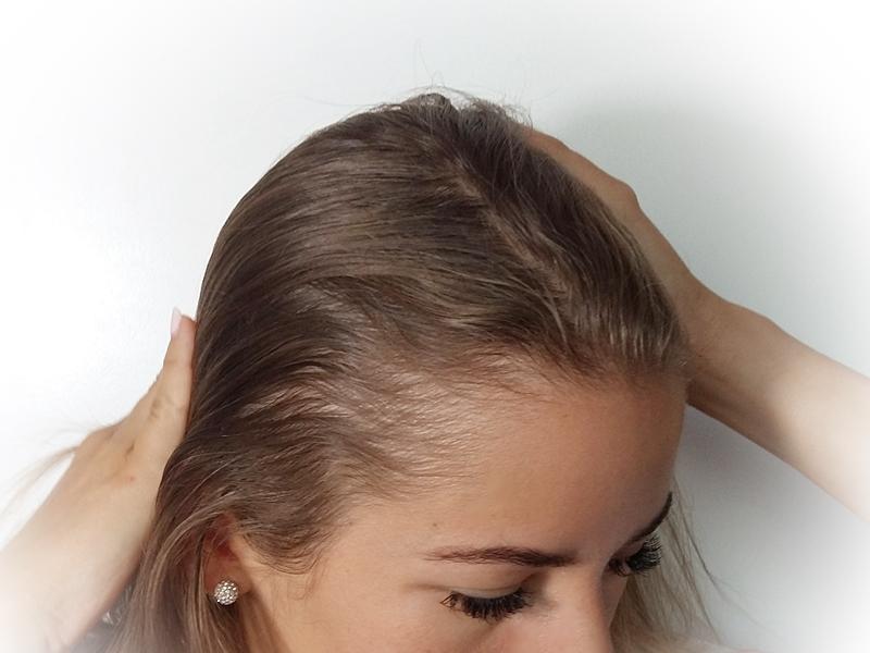 co jest dobre na wypadanie włosów po ciąży