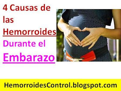 causas-de-las-hemorroides-durante-el-embarazo-tratamiento-casero-natural