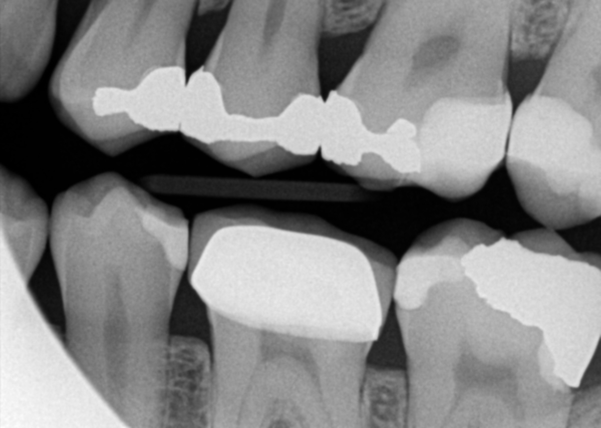 Sweet Tooth Distal Decay On 2nd Molars