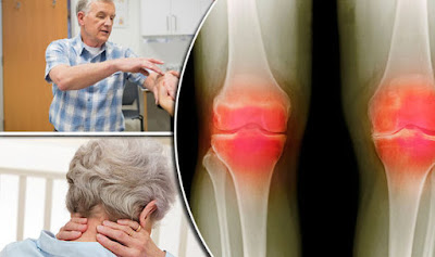 Arthritis and joint pain treatment: Movement will ease symptoms made worse by winter cold