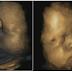 Share Ya!! Inilah Yang Terjadi Pada Bayi dalam Kandungan Ketika Ibunya Menangis atau Stres, Ibu Hamil Wajib Tahu!!