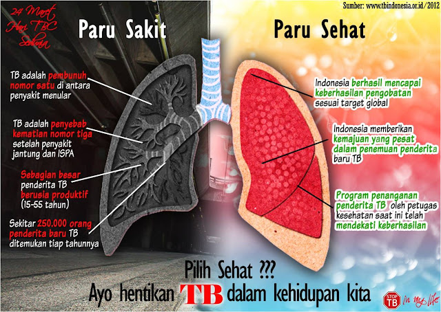 PERLU TAU NIH! Ciri-Ciri Penyakit TBC, Waspadai Sebelum Terlambat!