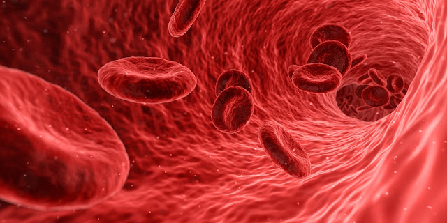 Mengenal Apa Itu Anemia, Jenis, dan Penyebab